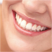 Gardena Teeth Whitening